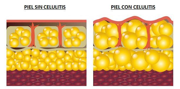 ALIDYA elimina la celulitis